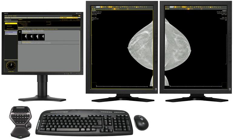 АРМ врача для просмотра маммографических изображений МТЛ